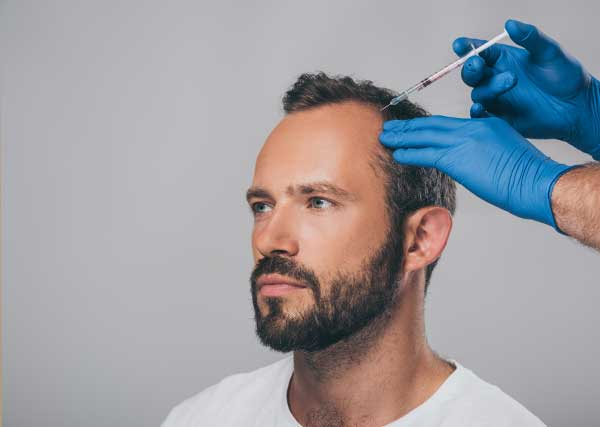 formulas-alopecia-formulacion-magistral-laboratorio-perello-2
