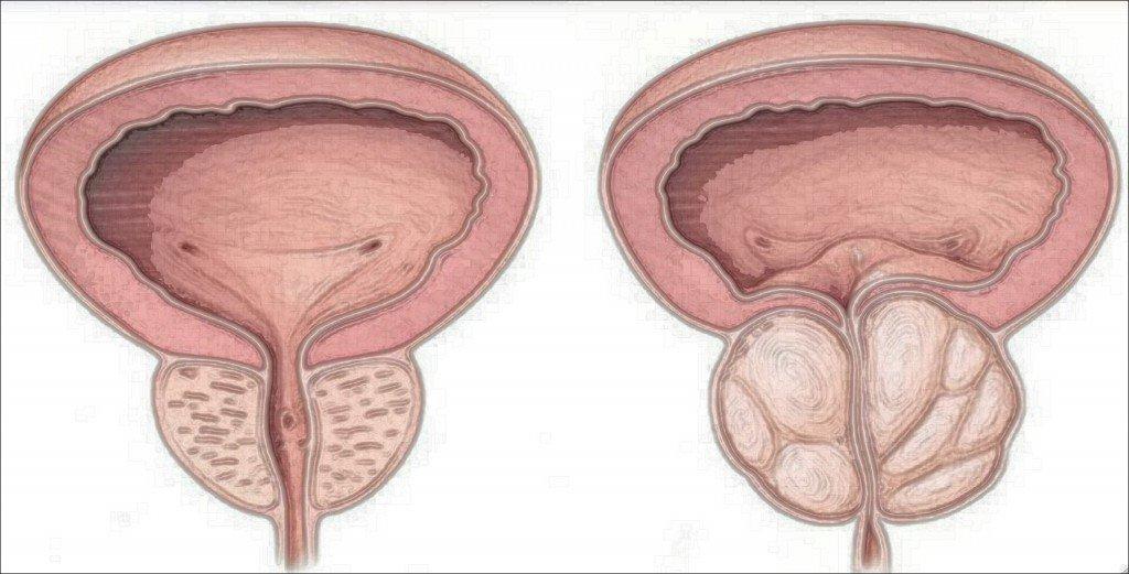 prostata-hbp-formulacion-magistral-laboratorio-perello